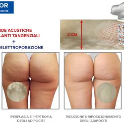 Il più potente tra i trattamenti corpo a Vicenza contro la cellulite